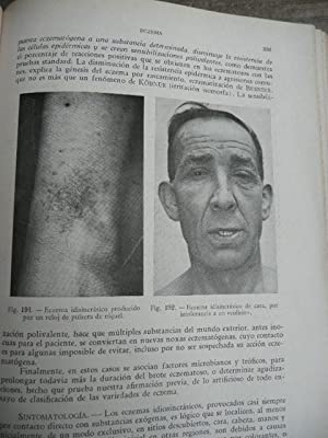 DERMATOLOGIA Y VENEREOLOGIA: Gay Prieto, Jose
