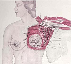 Plastic surgery of the breast and abdominal: Thorek, Max, 1880-1960