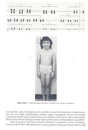 Clinical pedodontics. [The children's dentisthis practice &: Finn, Sidney B.
