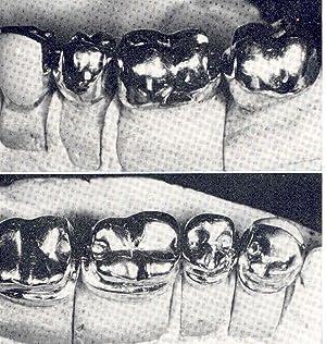 Partial denture construction, principles and techniques. [The: McCracken, William L.