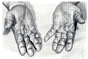 Hyperlipidemia : diagnosis and therapy: Rifkind, Basil M.