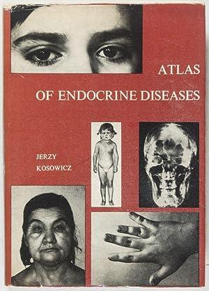 Atlas of Endoctrine Diseases: Kosowicz, Jerzy