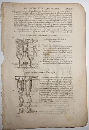 16th-century leaf with four illustrations of wooden peg-leg for poor men, a foot-support strap, a...