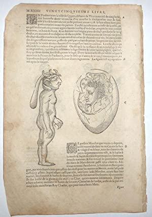 16th-century leaf with four illustrations of conjoined twins and birth defects from Ambroise Paré...