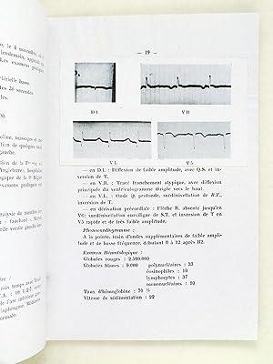 Les infarctus du myocarde consécutifs à des injections de vaccins. [ Livre dé...