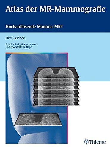 Lehratlas Der Mr-Mammographie: Hochauflösende Mamma-Mrt