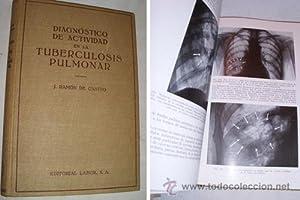 DIAGNÓSTICO DE ACTIVIDAD EN LA TUBERCULOSIS PULMONAR: CASTRO J.Ramón de