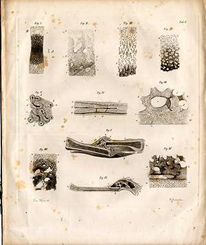 De inflammatione ossium eorumque anatome generali. Exercitatio: Miescher, Johann Friedrich
