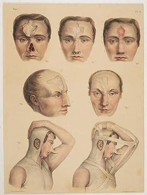 Rhinoplastique. 1 Tafel nach Zeichnungen von N.H.Jacob.: Bourgery, Jean Bapt. Marc