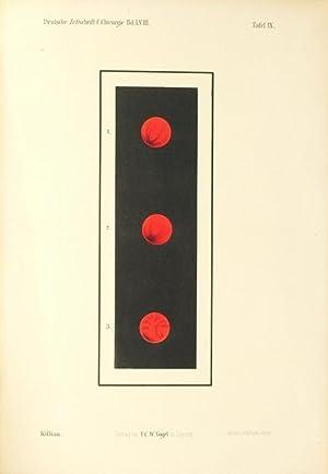 Zur Geschichte der Oesophago- und Gastroskopie (pp.500-512, 8 Fig., 1 farb. lith. Taf.).: Killian, ...