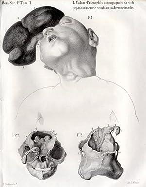 Di un proenceffalo umano singolare per alcune parti soprrannumerarie sembianti a dermochimache.: ...