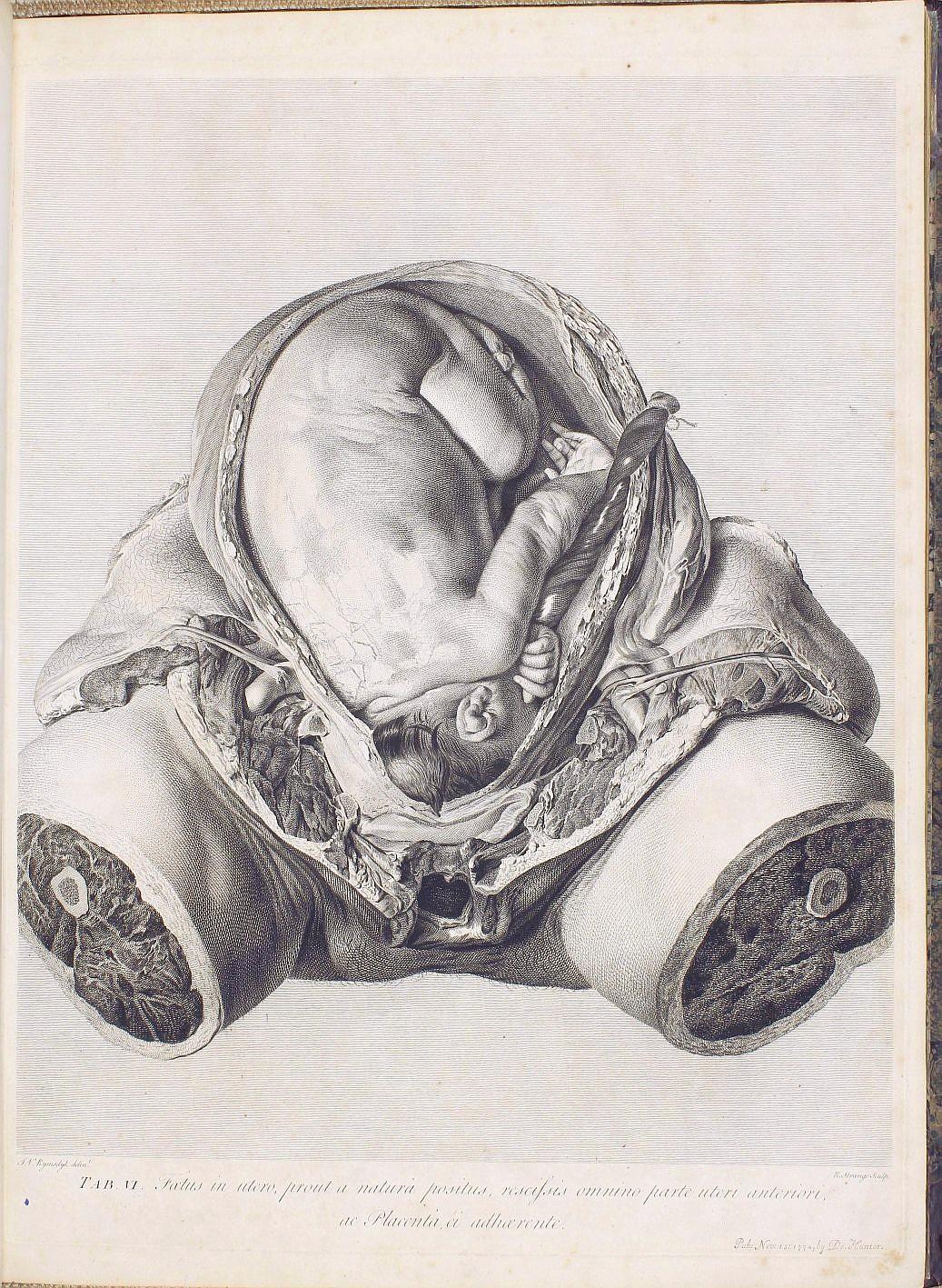 Anatomia Uteri Humani Gravidi Tabulis Illustrata The Anatomy Of The