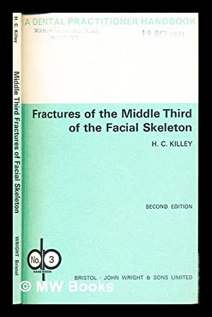 Fractures of the middle third of the: Killey, Homer Charles
