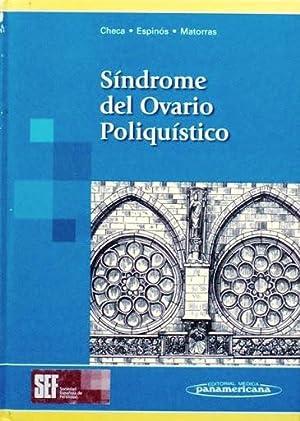 SINDROME DEL OVARIO POLIQUISTICO: CHECA VIZCAINO, M.A.
