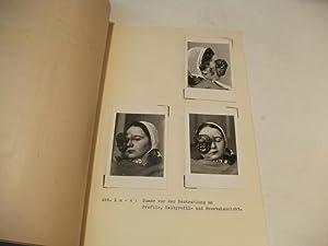 Über ein Spongioblaston des Opticus.: Hohner, Erika
