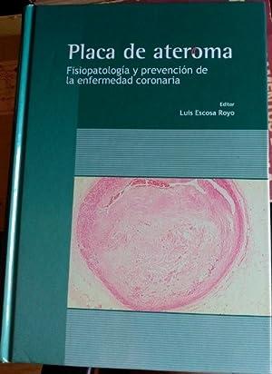 PLACA DE ATEROMA. FISIOPATOLOGIA Y PREVENCION DE LA ENFERMEDAD CORONARIA.: ESCOSA ROYO, Luis.