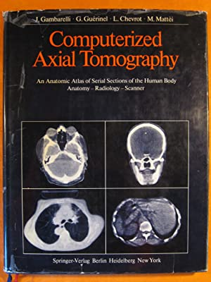 Computerized Axial Tomography: An Anatomic Atlas of Serial Sections of the Human Body. Anatomy, R...