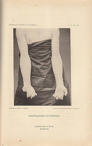 Nouvelle Iconographie de la Salpêtrière n° 2 février mars 1891: Charcot & Paul Richer & ...