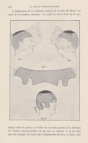 La Revue Maxillo-Faciale - Médecine, Chirurgie, Prothèse,: A. Chervin, Marcel