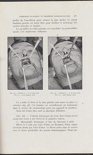 La Revue Maxillo-Faciale : Médecine, Chirurgie, Prothèse,: Frey, Gougerot, U.