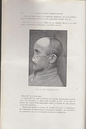 La Restauration Maxillo-Faciale - Revue pratique de: Pont, Dieulafé, A.