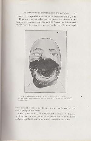 La Restauration Maxillo-Faciale - Revue pratique de: L. Dufourmentel, Hollande,