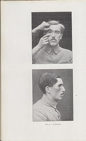 La Restauration Maxillo-Faciale - Revue pratique de: E.J. Moure, Coulomb,