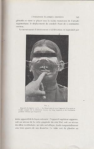 La Restauration Maxillo-Faciale - Revue pratique de: Pierre Sebilleau, Chenet,