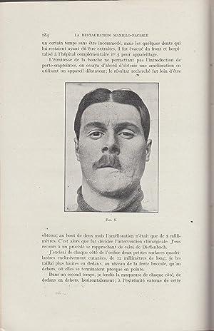 La Restauration Maxillo-Faciale - Revue pratique de: Pont, Jean Rouget,