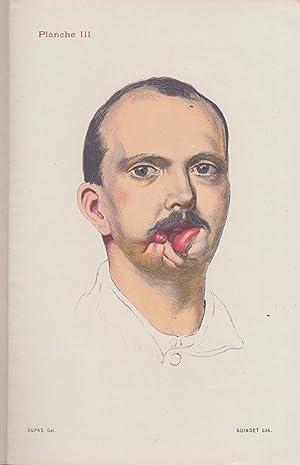 La Restauration Maxillo-Faciale - Revue pratique de: E.J. Moure, O.