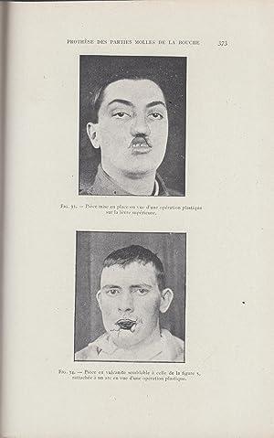 La Restauration Maxillo-Faciale - Revue pratique de: V. H. Kazanjian,