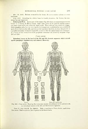 Tumors of the spinal chord: Elsberg, Charles A[lbert]