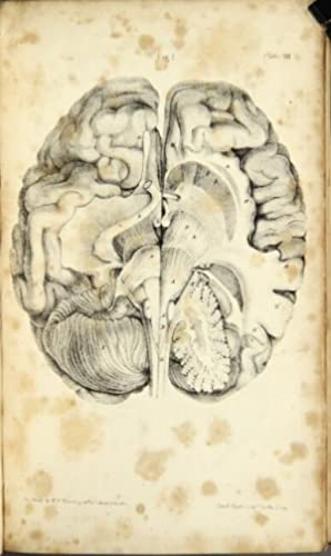 The human brain, its configuration, structure, development, and physiology; illustrated by ...