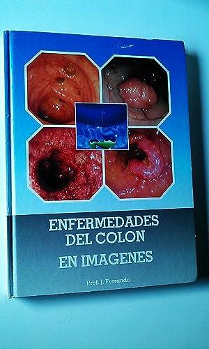 Enfermedades del colon en Imágenes: Prof. J Ferrando