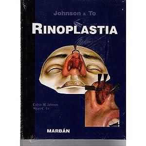 RINOPLASTIA / Johnson y To: Johnson y To