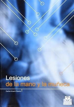 Lesiones mano y muÑeca: Irisarri, Carlos