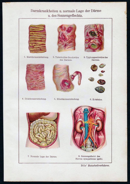 Fein Lage Des Darmes Fotos - Menschliche Anatomie Bilder ...