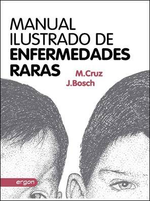 MANUAL ILUSTRADO DE ENFERMEDADES RARAS: Manuel Cruz Hernández; Juan Bosch Hugas