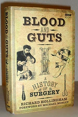 Blood and Guts - a History of Surgery