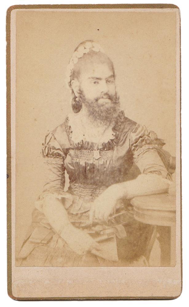 Carte De Visite CDV Of Bearded Lady Annie Jones