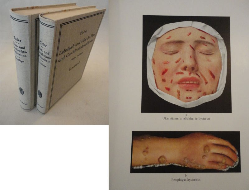 Lehrbuch und Atlas der Haut- und Geschlechtskrankheiten.: Karl Zieler: