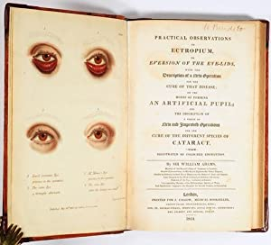 Practical Observations on Ectropium or Eversion of the Eyelids, with the Description of a new Ope...
