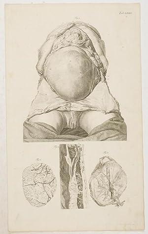 Anatomische Tafeln: Die schwangere Bärmutter . 10: Loder, Justus Christian