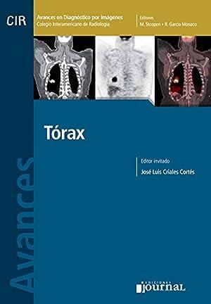 Avances en diagnóstico por imágenes. Tórax: Vv.Aa.