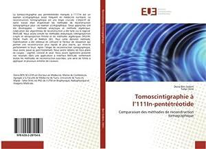 Tomoscintigraphie à l'111In-pentétréotide : Comparaison des méthodes de reconstruction ...