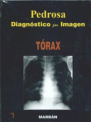 Diagnóstico por Imagen, Vol. 1: Tórax: Pedrosa