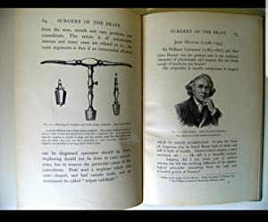 A Glimpse Into the History of the Surgery of the Brain. Delivered before the Royal College of ...
