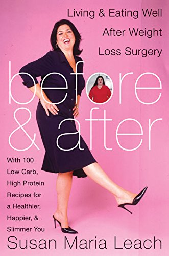 Before & After: Living & Eating Well After Weight Loss Surgery: Leach, Susan Nuziato; ...