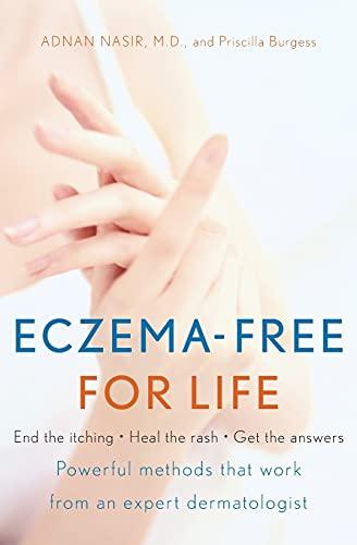 Eczema-Free for Life: Nasir, Adnan, M.D.; Burgess, Priscilla