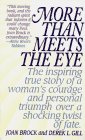 9780061093074: More Than Meets the Eye: The Story of a Remarkable Life and a Transcending Love (Harper Spotlight)